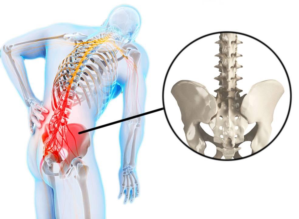 Что делать, если потянул поясницу? лечение растяжения спины