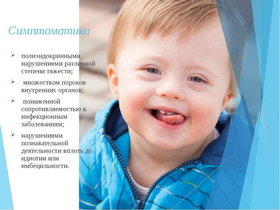 Наиболее частые генетические дефекты у детей