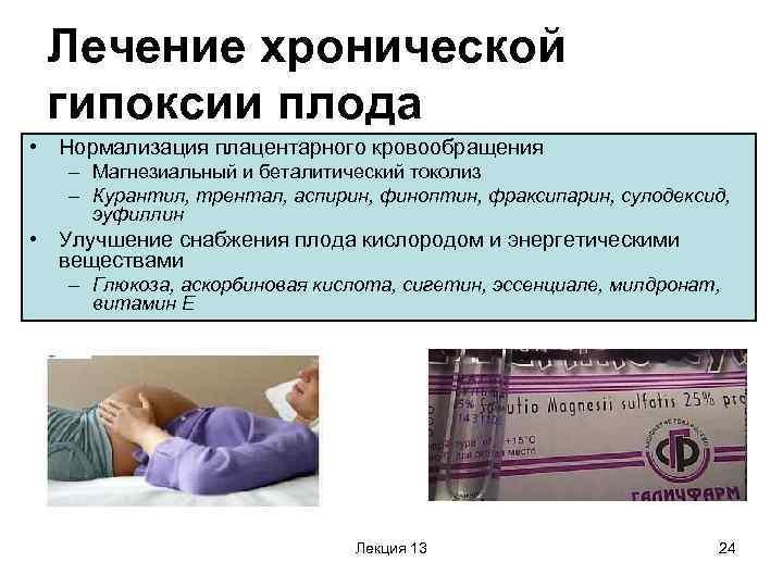 Как определить синдром дауна у плода | медицинский центр - медпросвет