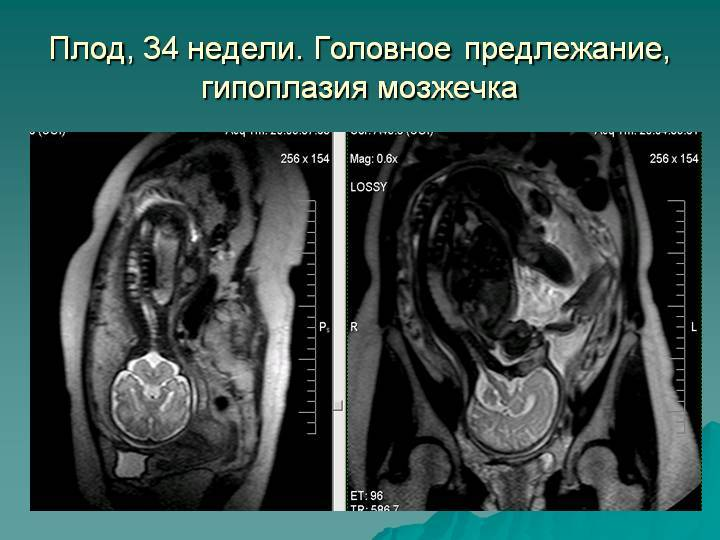 Магнитно-резонансная томография – мрт: принцип работы, сфера применения. подготовка к мрт.