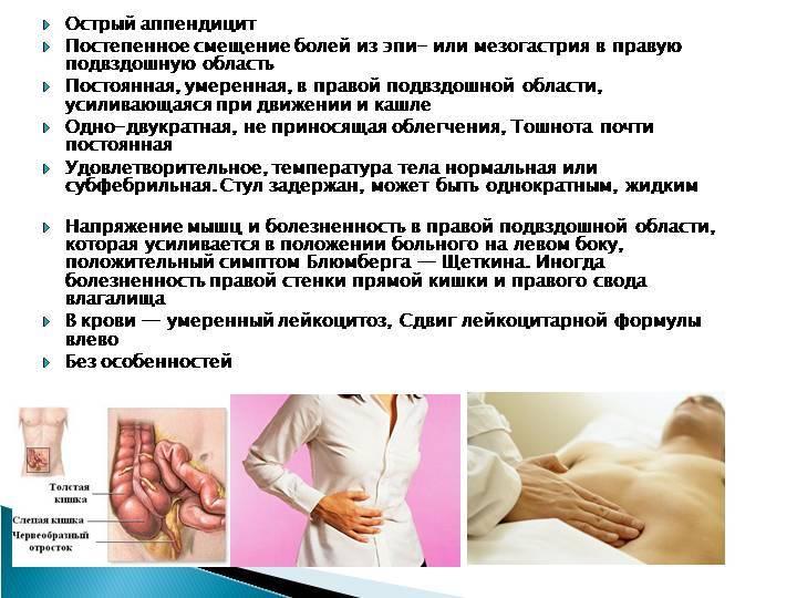 Аппендицит: узи-диагностика аппендицита