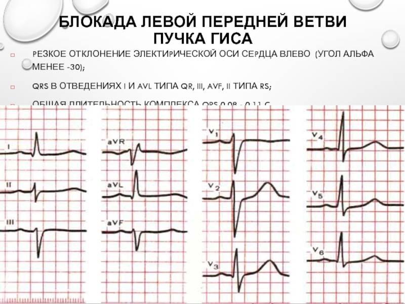 Заболевания, сопровождающиеся нарушением сердечного ритма и проводимости: причины, симптомы, диагностика и методы лечения на сайте «альфа-центр здоровья»