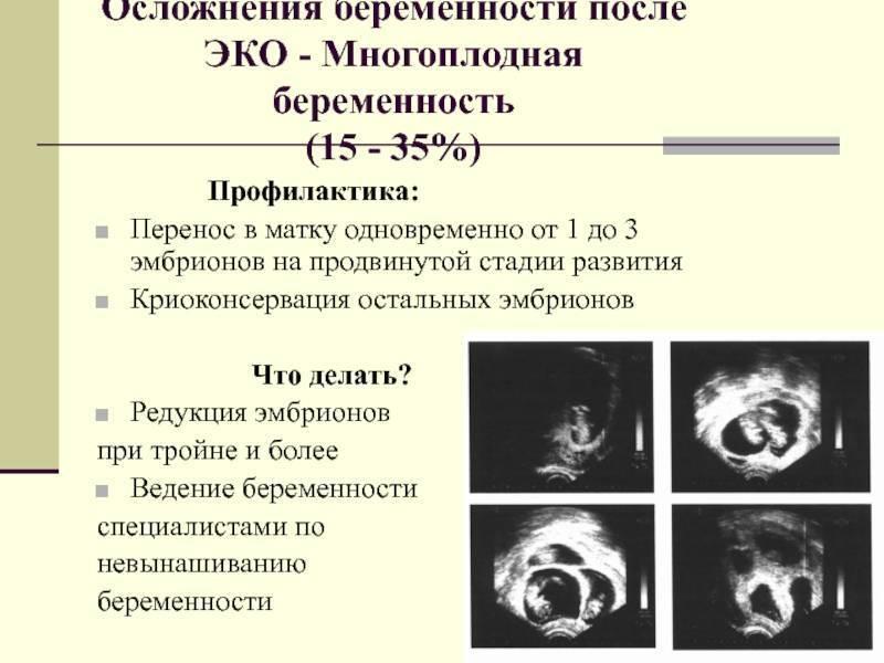 Перенос эмбрионов при эко - процедура переноса замороженных эмбрионов после криоконсервации в gms эко