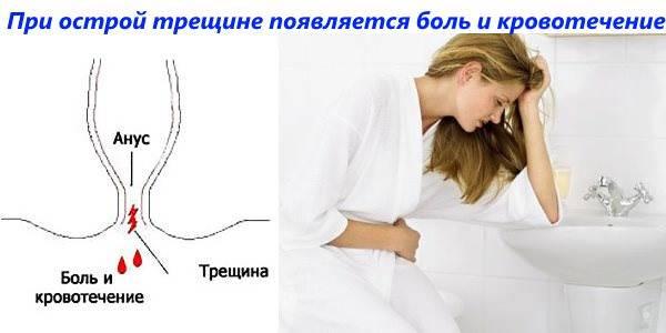 Боль в заднем проходе у взрослых