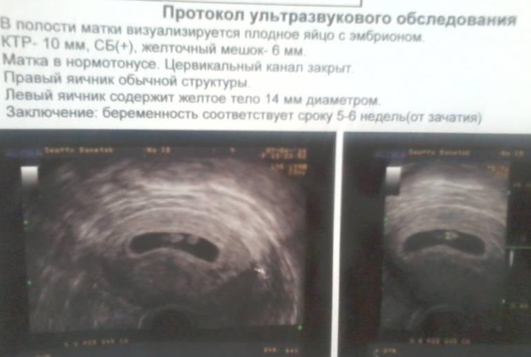 Узи диагностика при беременности