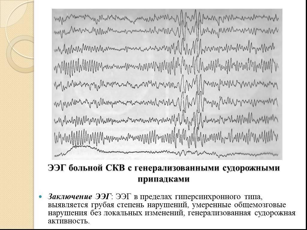 Что такое энцефалограмма головного мозга