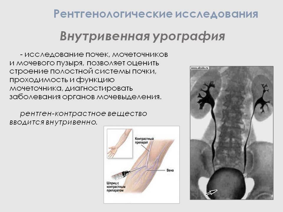 Как делается цистография детям: подготовка и противопоказания