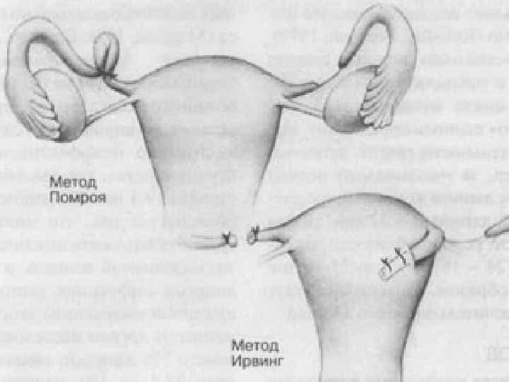 Чем опасно перевязывание маточных труб