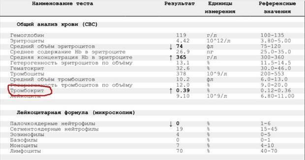 Анализ крови rw – реакция вассермана: что это такое. расшифровка анализа rw. где сдать кровь на rw в москве?