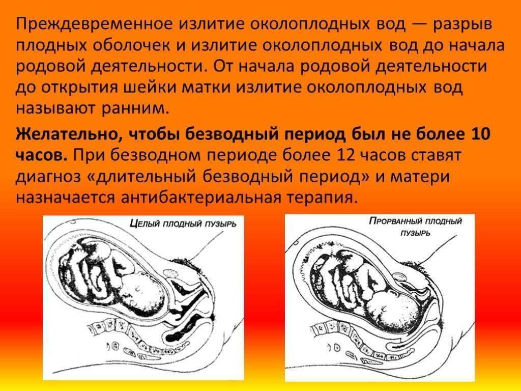 Безводный период при родах: норма