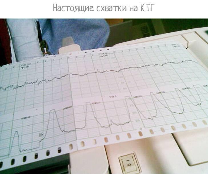 Как выглядят схватки на ктг - прочeе   диагностика организма