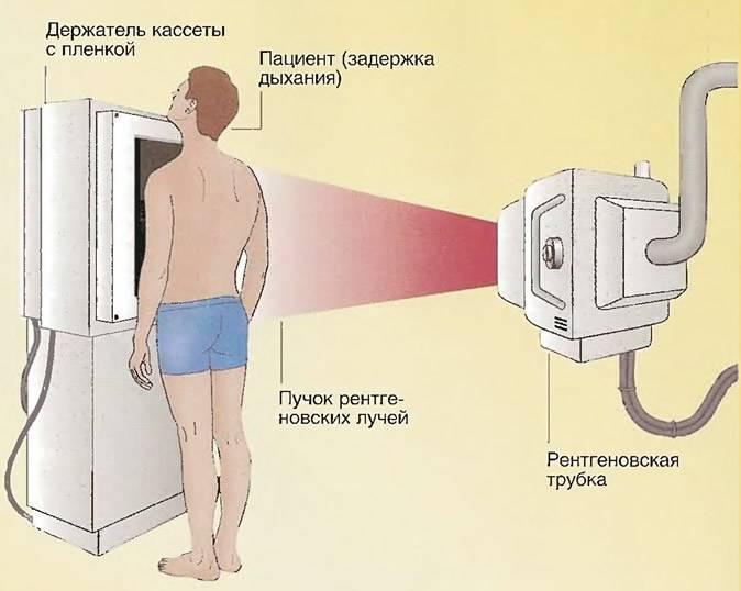 Рентген легких ребенку: подготовка, прохождение процедуры и противопоказания