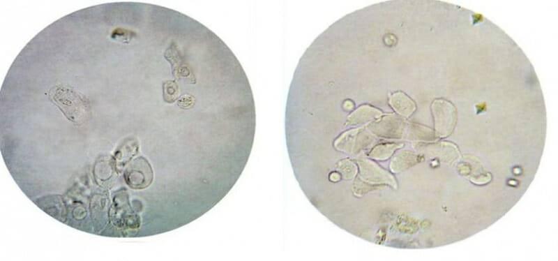 Мазок из цервикального канала шейки матки: что это за исследование, как выполняется, как подготовиться и расшифровать