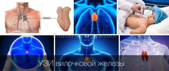 Вилочковая железа. синдром увеличения вилочковой железы у детей раннего возраста | медафарм - портал о пластической хирургии,медицинском оборудовании и медицине в целом