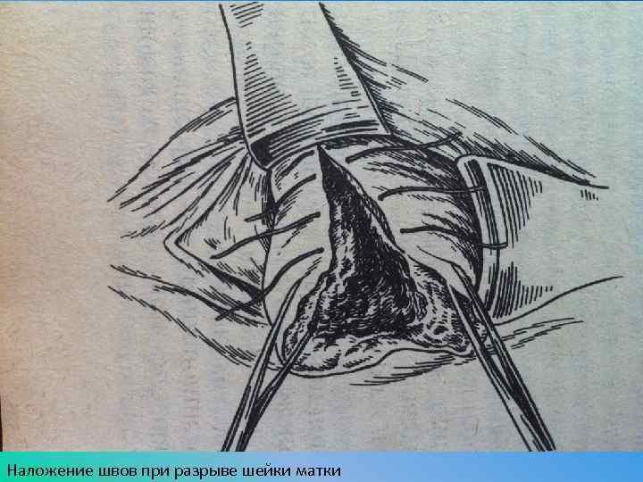 Деформация шейки матки (послеродовые разрывы шейки матки) * клиника диана в санкт-петербурге