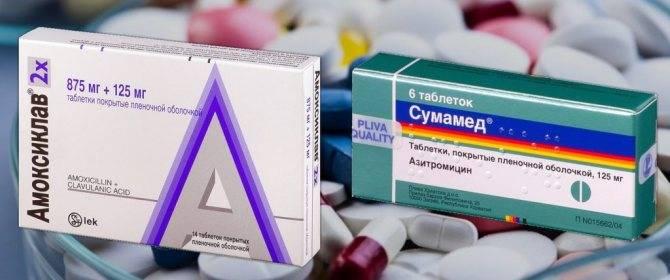 Стоматит у детей лечение антибиотиками