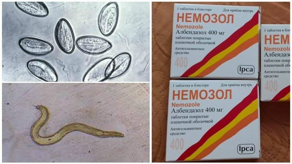 Препараты от гельминтоза у взрослых и детей – ответы на вопросы посетителей аптеки