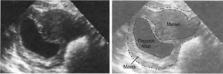 Женское бесплодие