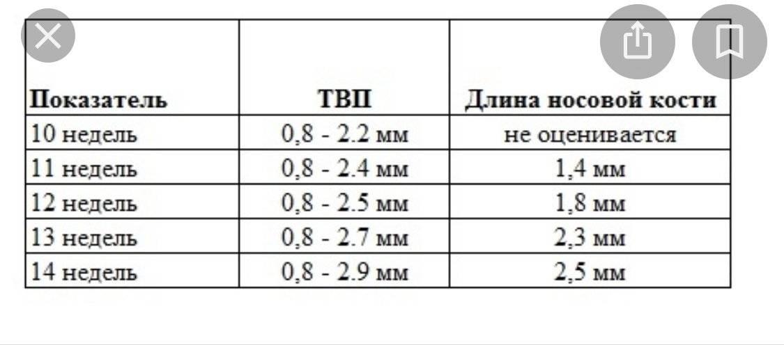 Носовая кость в 19 недель норма таблица