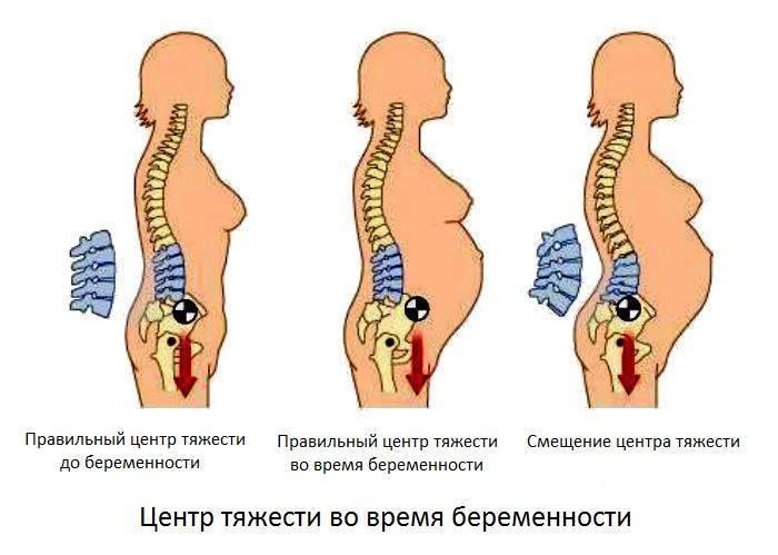 Физические упражнения во время беременности  20 главных можно и нельзя