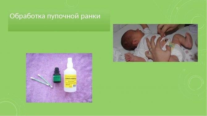 Пупок новорожденного: как ухаживать в период заживления
