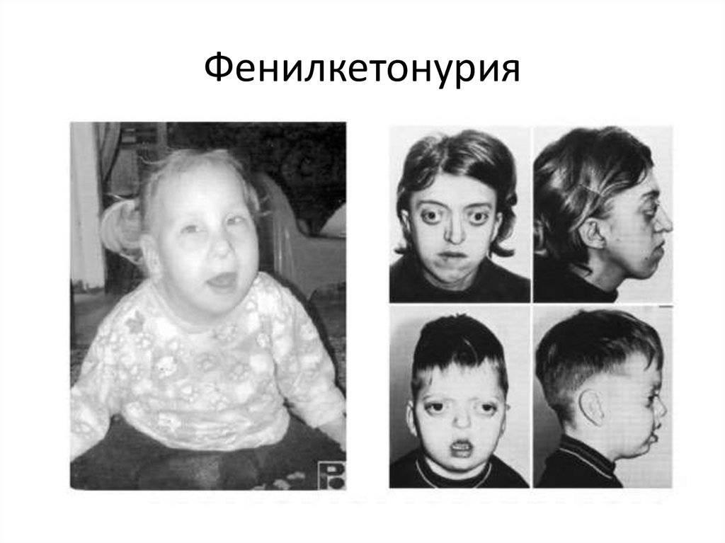 Олигофрения у детей - симптомы, причины, степени, лечение олигофрении