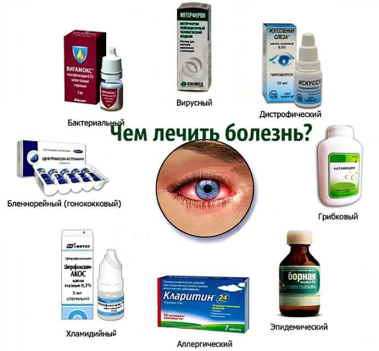Конъюнктивит у малыша до года — чем лечить? - энциклопедия ochkov.net