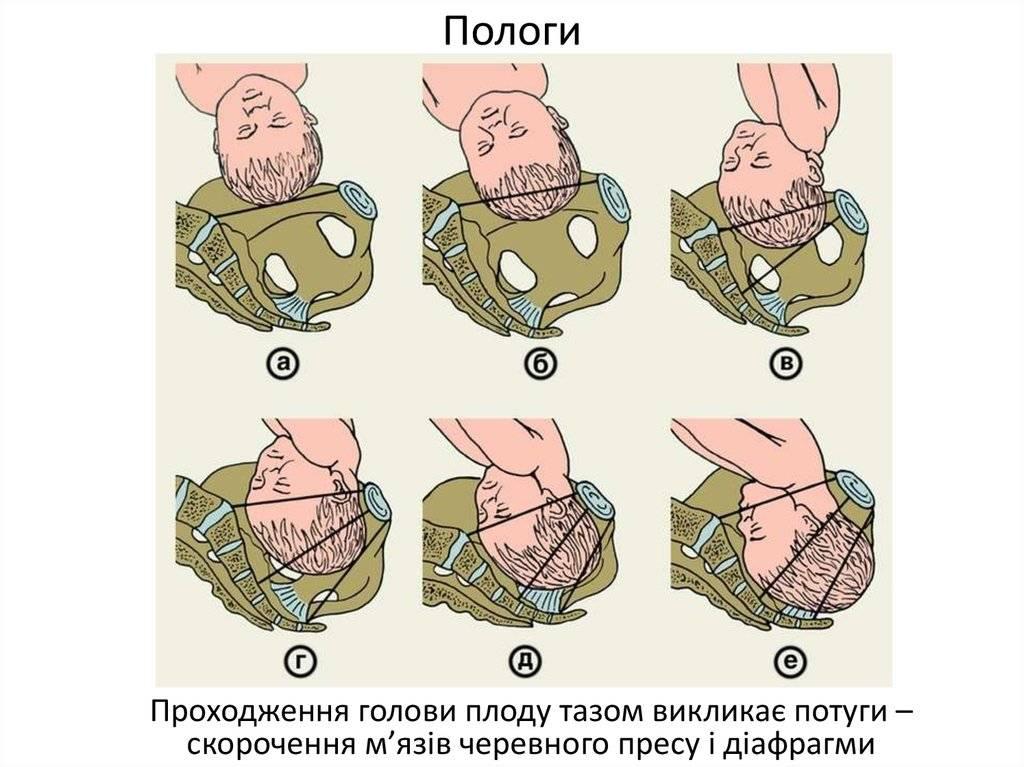 Расхождение костей таза при беременности: какие сроки и что делать?