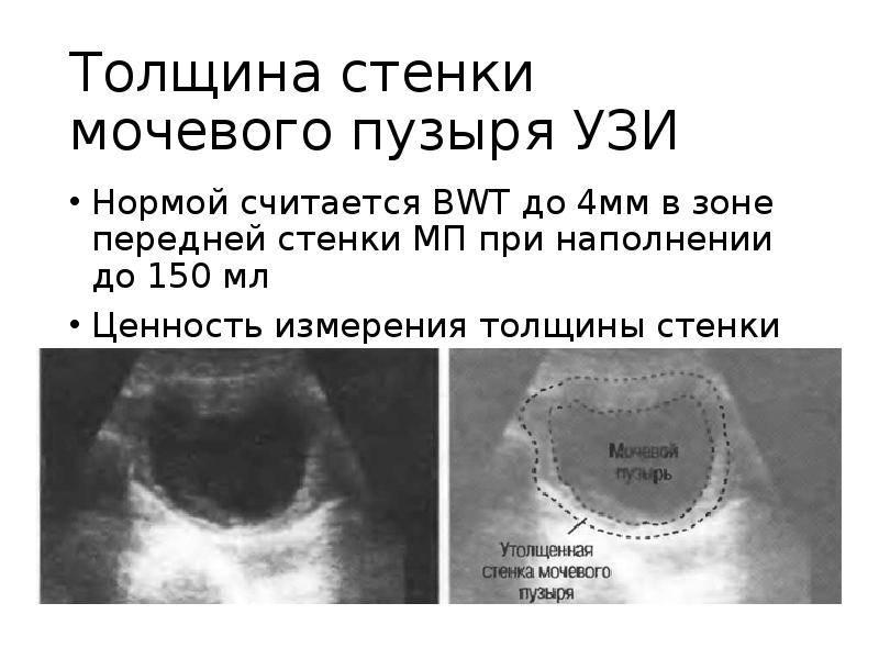 Процедура узи мочевого пузыря у детей, или как перестать бояться врачей