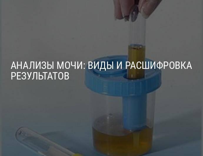 Для каких ситуаций информативна проба мочи по сулковичу