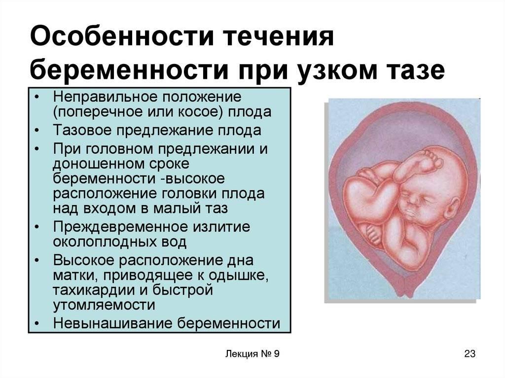 Каковы особенности течения третьей беременности, какие признаки говорят о начале родов и как они проходят? — беременность