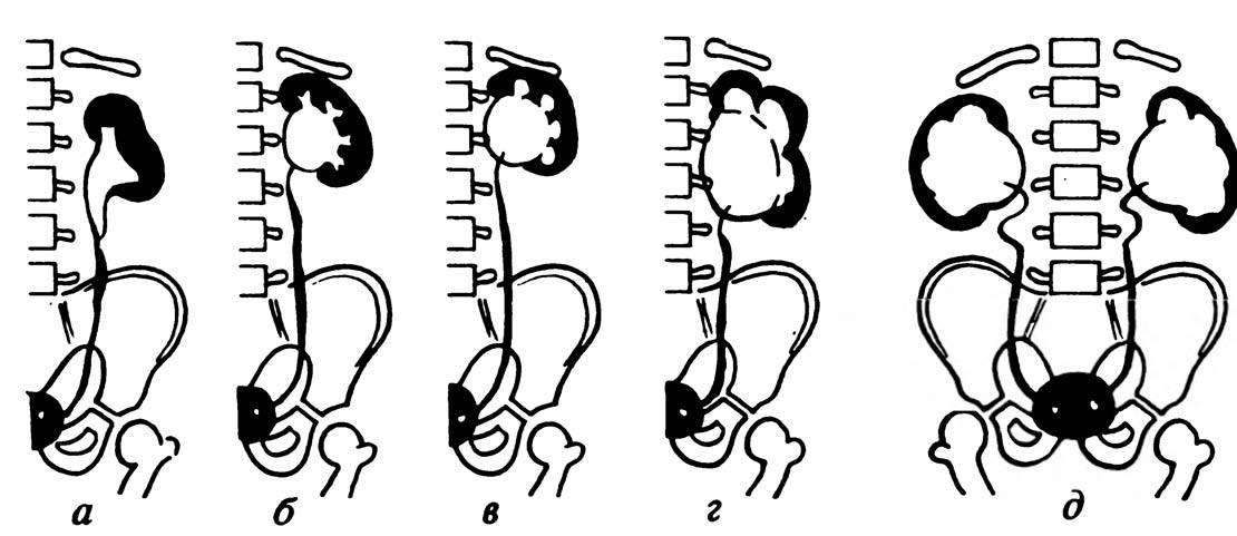 Патологии почек у плода: что и когда показывает экспертное узи при беременности * клиника диана в санкт-петербурге
