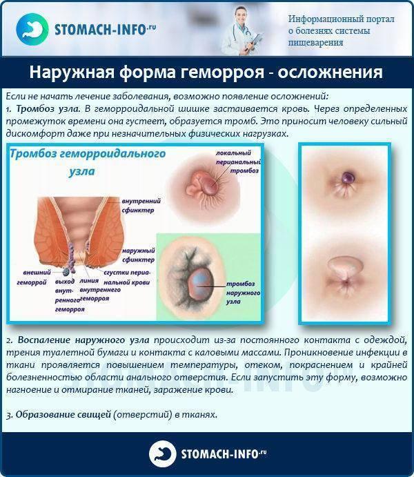 Боли в заднем проходе   что делать, если болит задний проход?   лечение боли и симптомы болезни на eurolab
