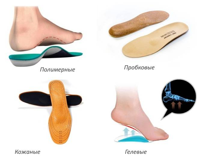 Купить кожаные стельки-супинаторы для лечения плоскостопии 3-4 степени с усиленным эффектом в москве, цены в интернет-магазине стельки.ру