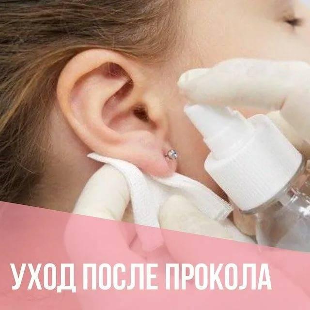Как обрабатывать уши после прокола пистолетом ребенку, сколько времени они заживают?   процедуры   vpolozhenii.com