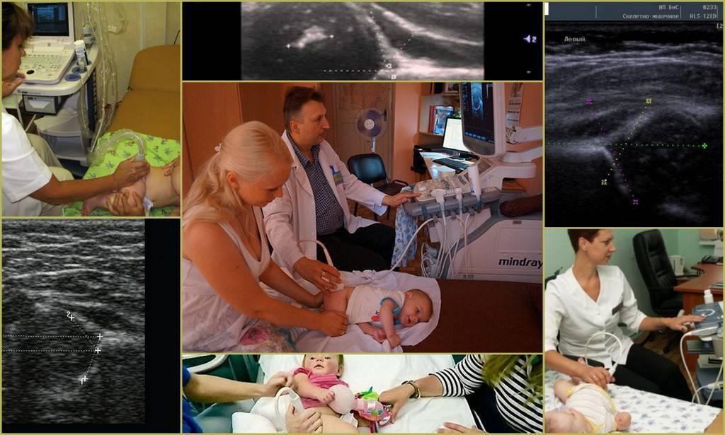 Нейросонография головного мозга новорожденных: нормы, расшифровка, центр, где сделать