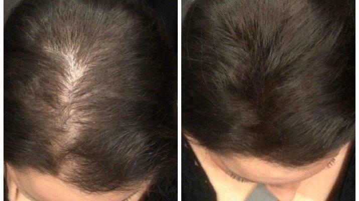 Выпадают волосы: что делать?