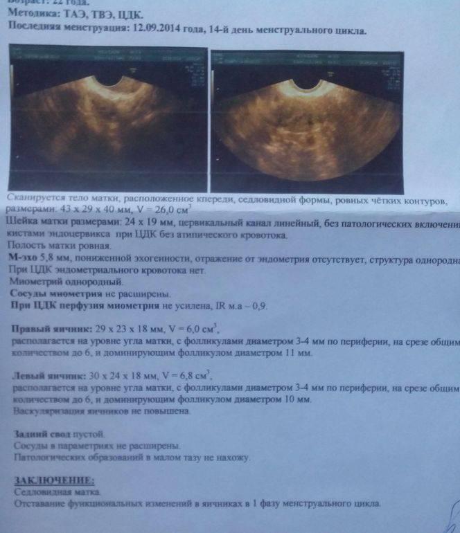 Эндометриоз во время климактерия