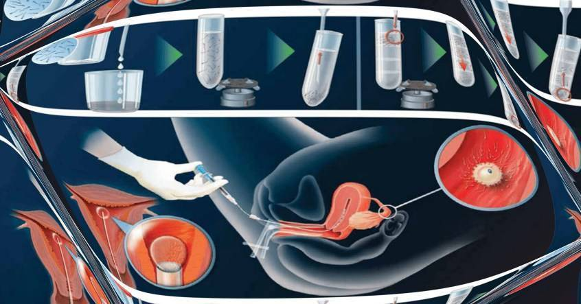 Эко (метод экстракорпорального оплодотворения) - эмбрион