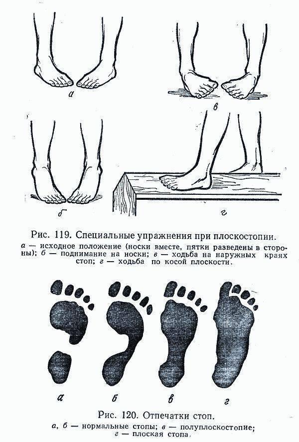 Заболевания по направлению вальгусная деформация первого пальца стопы