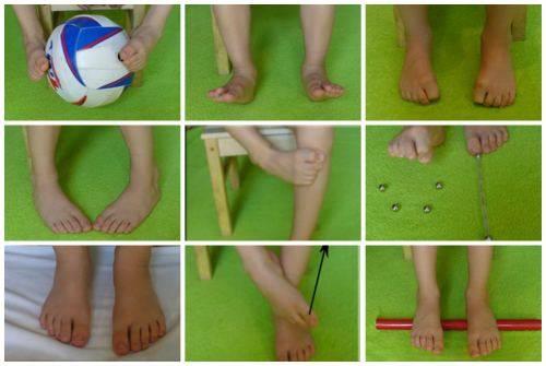 Лфк (гимнастика) при вальгусной (х-образной) деформации стопы у детей: комплекс упражнений физкультуры малышам