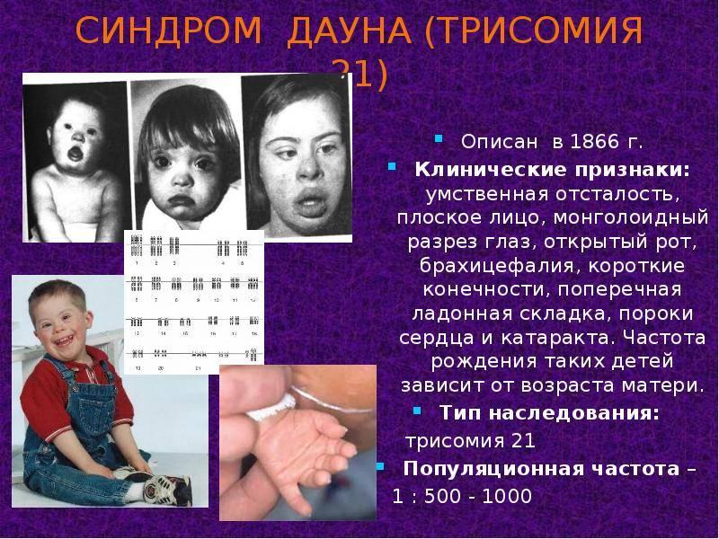 Синдром дауна: причины, риски, признаки