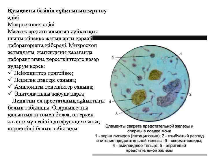 Эякулят - микроскопическое исследование | clinlabs.com