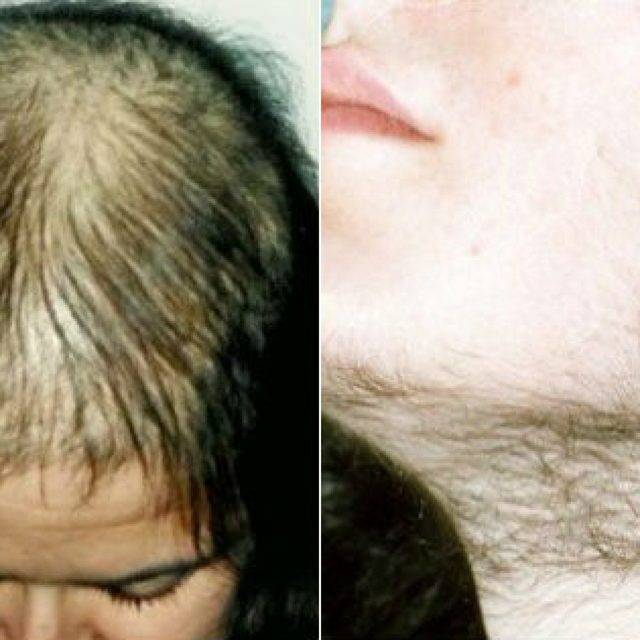 Лысина на голове у мужчин: лечение, причины, как избавиться от облысения макушки?