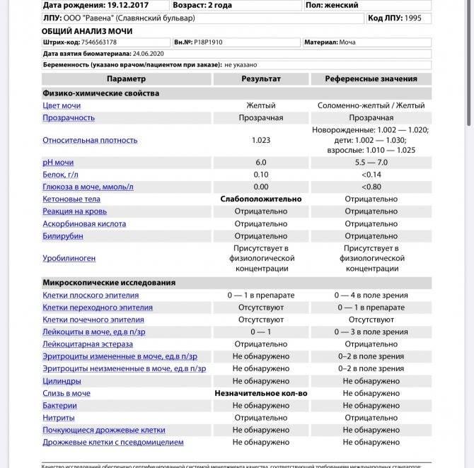 Анализ мочи на лейкоциты: подготовка, показания, норма, расшифровка