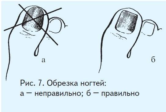 Способы размягчить ногти | как подстричь ногти на ногах пожилому человеку