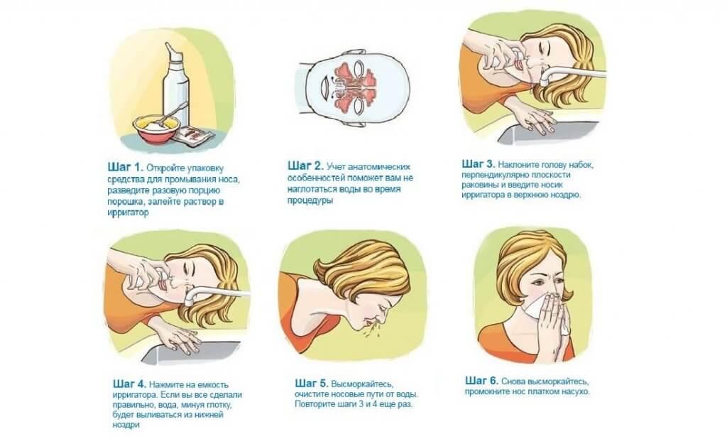 Аквамарис для малышей: как правильно промывать нос ребенку?