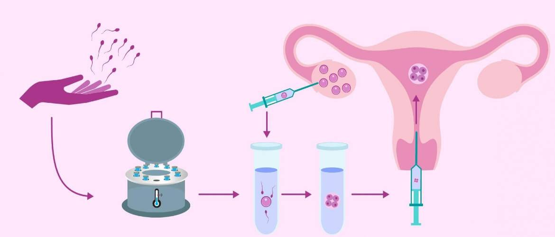 Искусственная инсеминация в домашних условиях: что необходимо знать для успешного зачатия