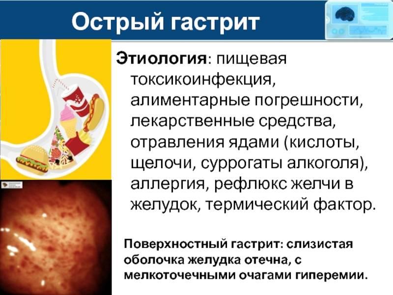 Хронический гастрит и гастродуоденит у детей