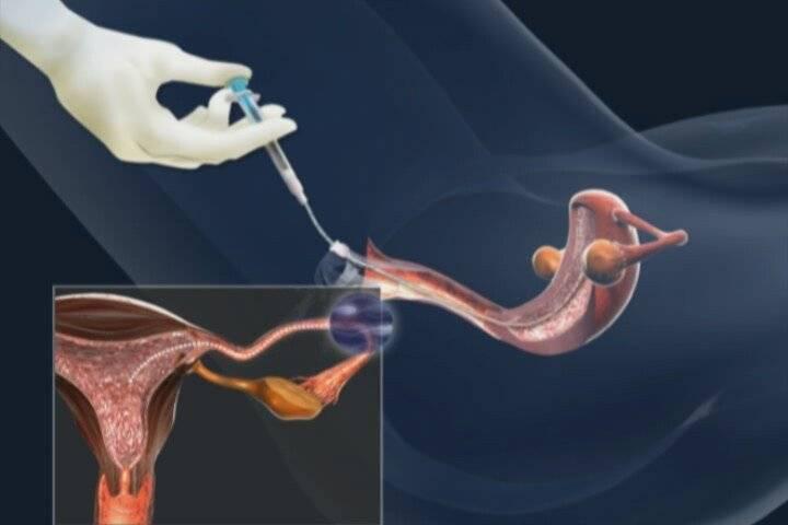 Лапароскопия кисты яичника, лапароскопия маточных труб – стоимость операции, отзывы, лучшие цены на лапароскопию в арт-эко